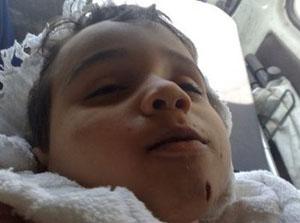 أطفال سوريا الشهداء